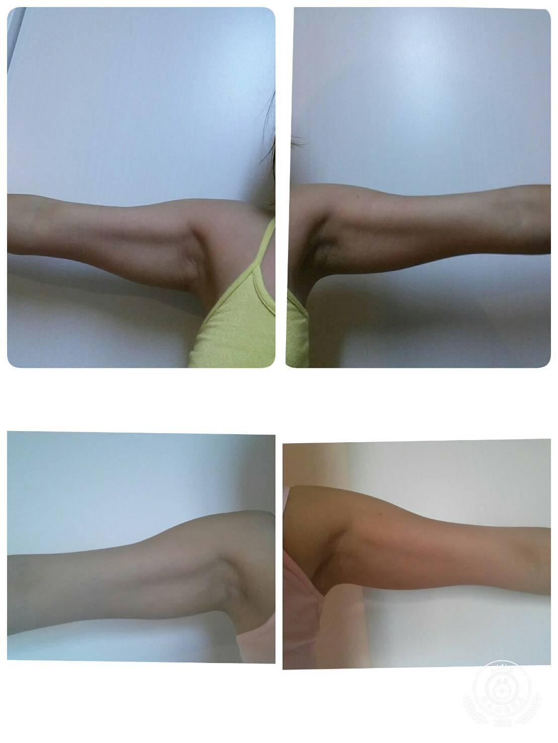 二の腕 痩せる 筋 トレ